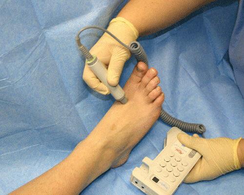 Tratamientos Pie diabético