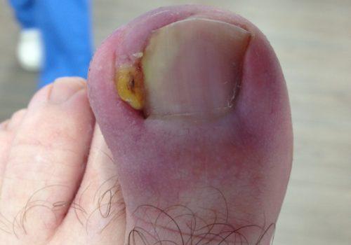 Cirugía Onicocriptosis