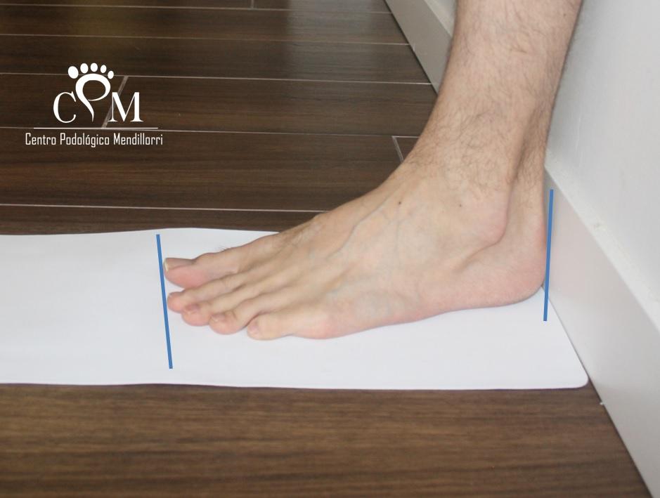 Medición del pie